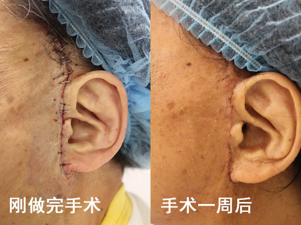 刚做完手术和手术一周后