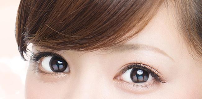 埋线双眼皮手术