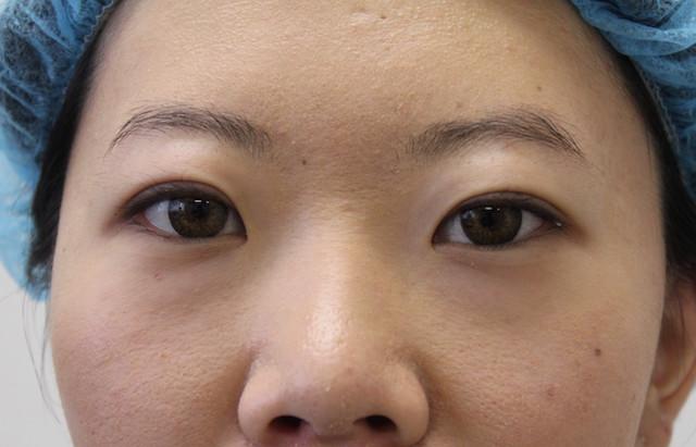 双眼皮_手术后