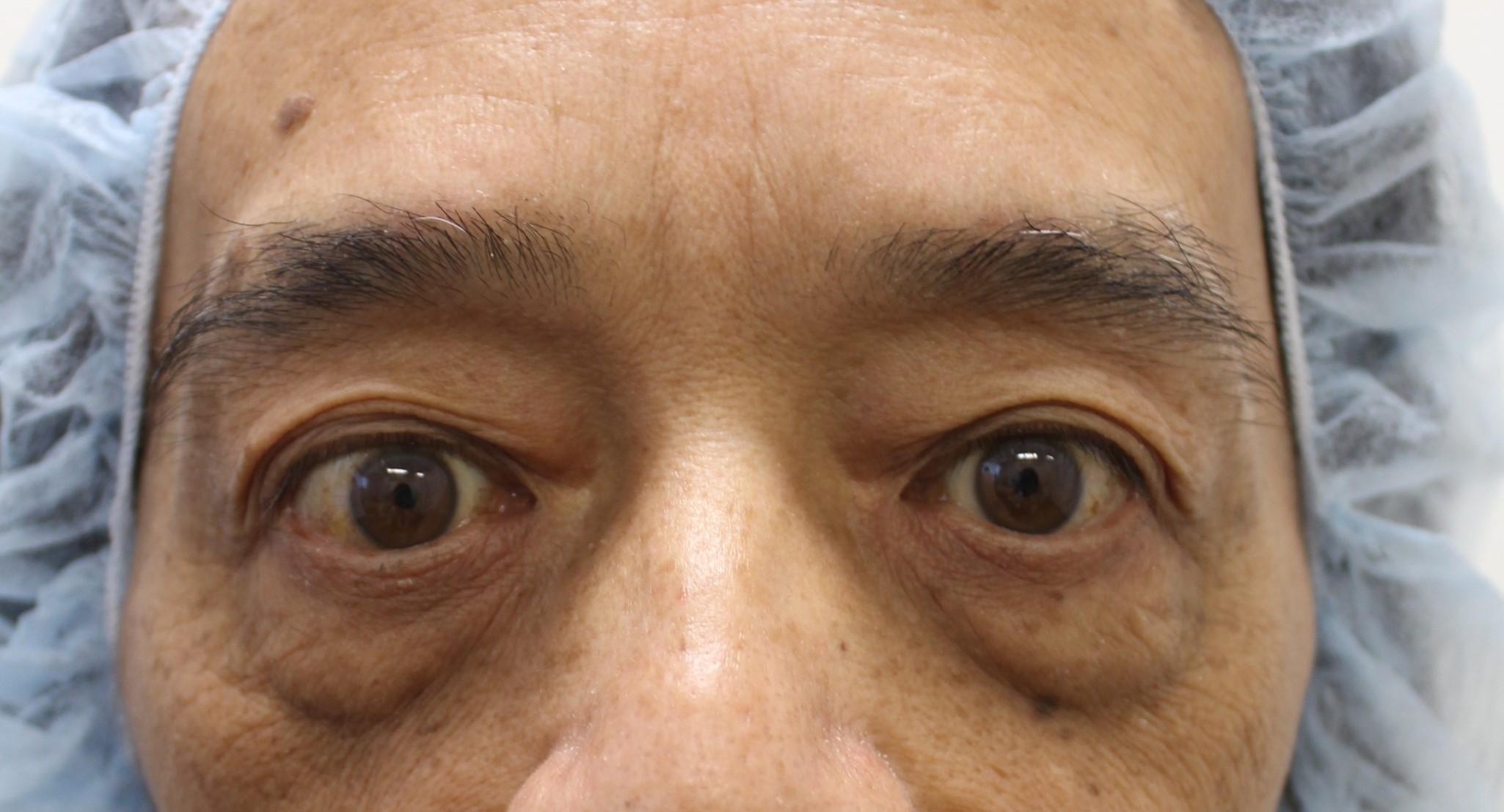 改善眼下松弛手术前