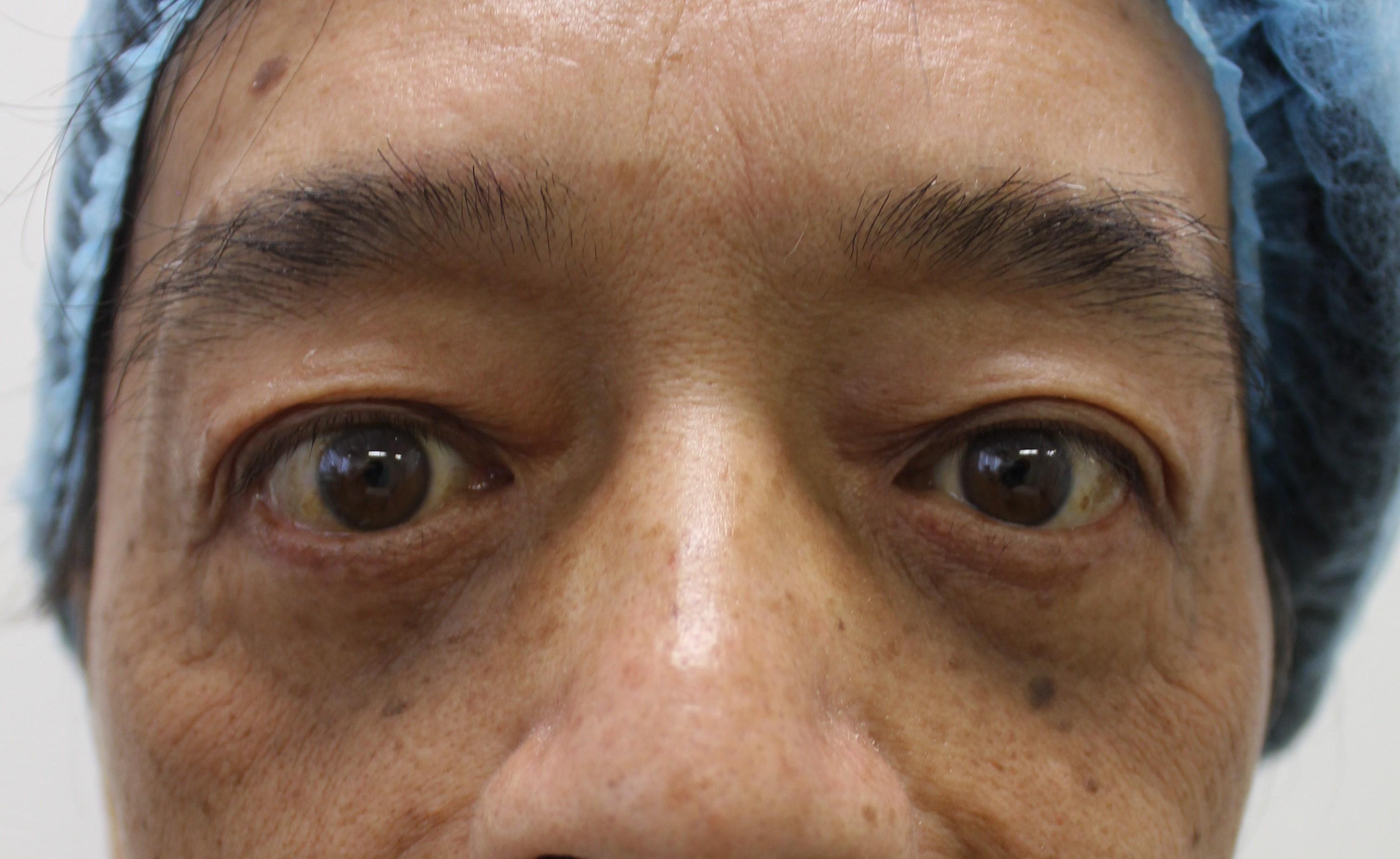 改善眼下松弛手术后