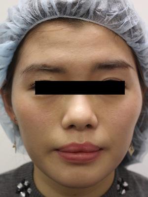 注射肉毒杆菌瘦脸 治疗后
