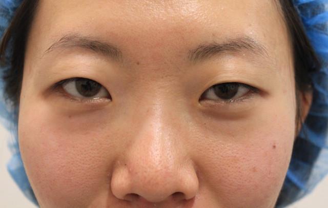 双眼皮手术前