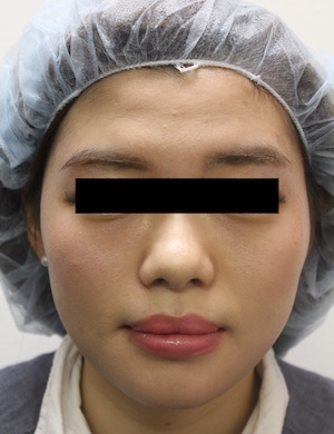 注射肉毒杆菌瘦脸 手术前