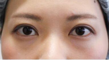 埋线双眼皮手术6个月后