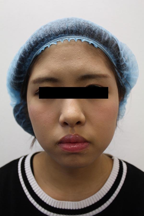 东京青山整形美容医院 BNLS瘦脸针 手术后