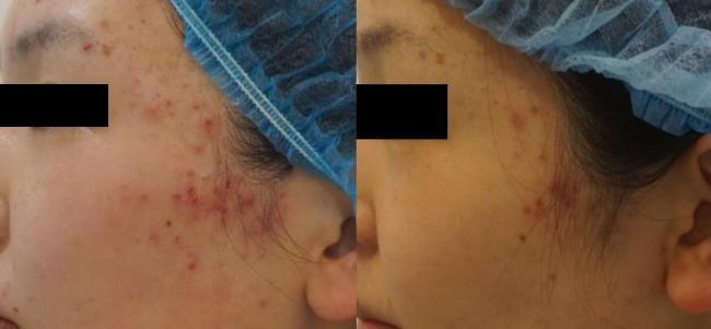 AGNES治疗前后对比图-左侧