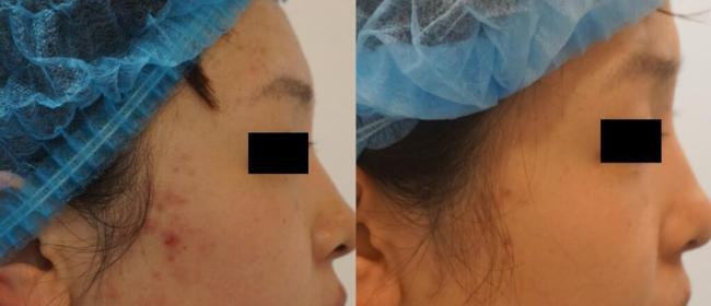 AGNES治疗前后对比图-右侧