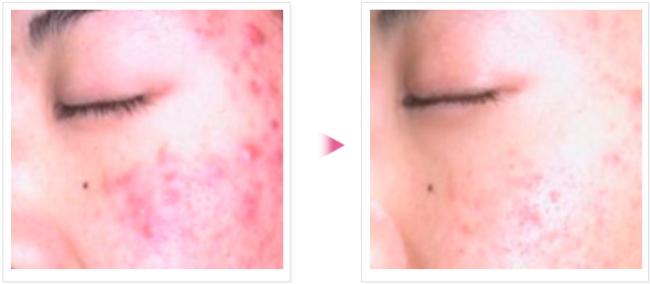 青春痘治疗 AGNES 前后对比图