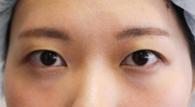 埋线双眼皮手术前