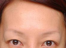额头的肉毒杆菌注射(治疗后)