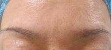 两眉间的肉毒杆菌注射(治疗后)