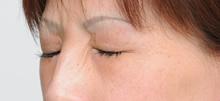 眼尾的肉毒杆菌注射(治疗后)
