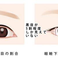 眼睑下垂治疗