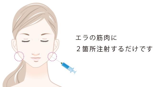 下颚肉毒杆菌注射