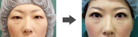 东京整容医院 双眼皮手术