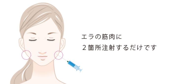 肉毒素注射瘦脸