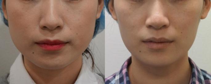 肉毒素瘦脸注射 前后对比图