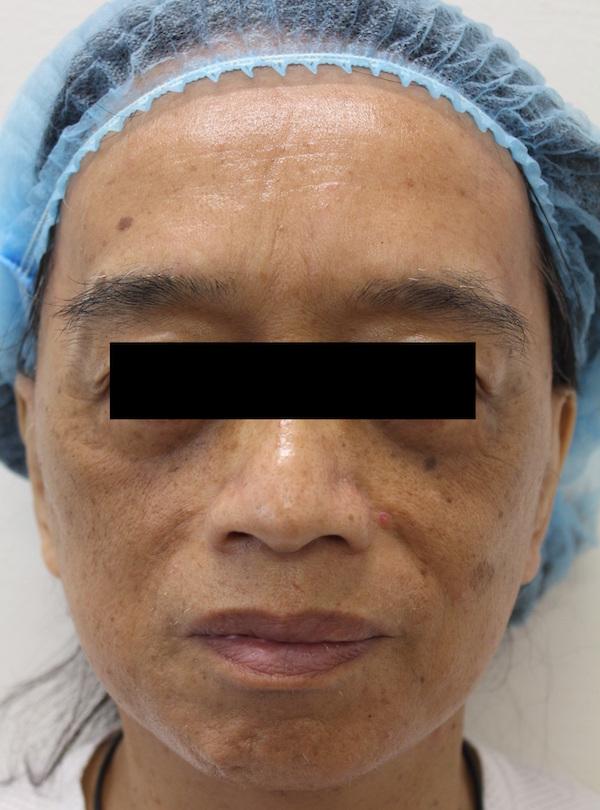 面部拉皮手术前