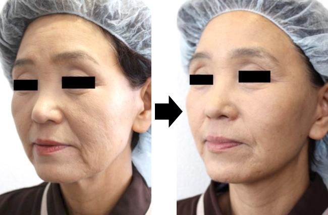 面部提拉手术 前后对比图