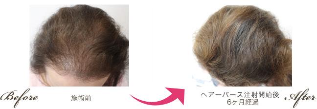 生发注射治疗 前后对比图